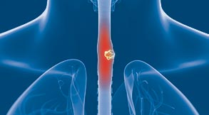 Esophageal Cancer Treatment in Tampa, FL