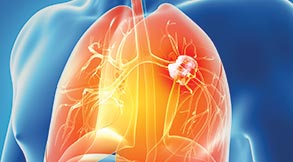 Lung Cancer Treatment in Tampa, FL