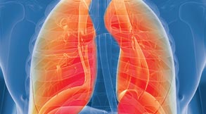 Mesothelioma Treatment in Tampa, FL